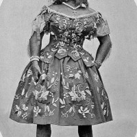 In the 19th century, Julia Pastrana, who suffered from excessive hair growth, was sold to a carnival sideshow and exhibited as a freak. Image via Wikimedia Commons.